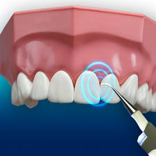 With 3,000 vibrations/min you can reach the smallest interdental spaces.