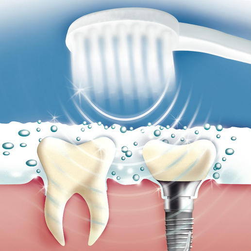 84 million air oscillations per minute lather the special Ultrasound Toothpaste into a micro-fine foam. When the bubbles implode, food debris, plaque, bacteria, etc. and stains are gently removed. (Unfortunately, this does not work with 'normal' toothpaste.)